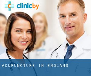 Acupuncture in England